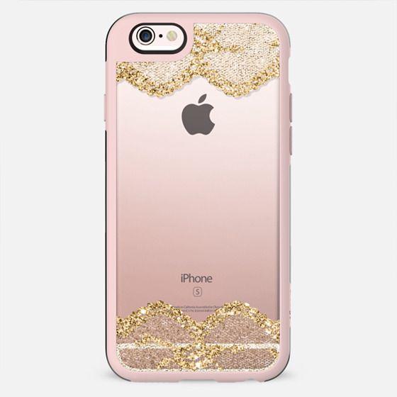 Double Faux Gold Romantic Lace  - New Standard Case