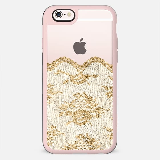 Faux Gold and White Romantic Lace  - New Standard Case