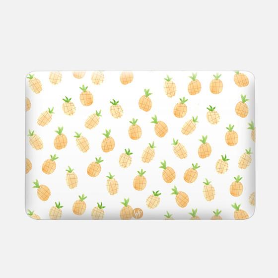Wonder Forest Pineapples Macbook Case